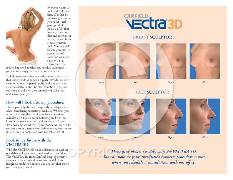 Vectra 3d sculpt the dream mjd patient communications tap to expand publicscrutiny Choice Image